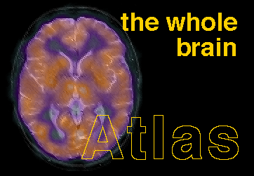 The Whole Brain Atlas